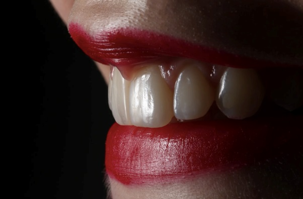Why Everyone is Obsessed with Yellowing Teeth (and How to Fix It)
